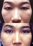 Western eyelids have a different structure than Asian eyelids, so it is necessary to use different styles of blepahroplasty for each race.