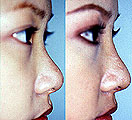 A nose job is the most delicate procedure on the face and is an art.