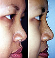 Each problem must be solved using the proper procedure to make a new, nice-looking nose for the individual.